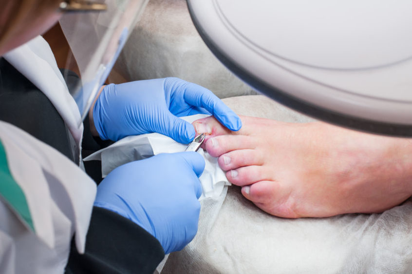 Podiatrist treating toenail fungus.